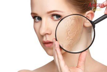da khô nên dùng gì để cải thiện