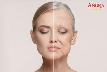 nguyên nhân và dấu hiệu lão hóa da