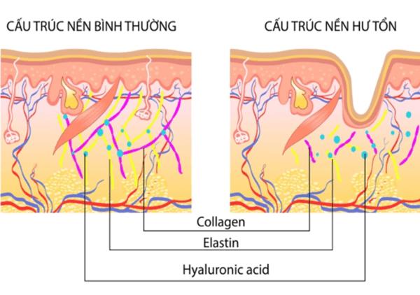 nguyên nhân khiến da lỏng lẻo, hư tổn