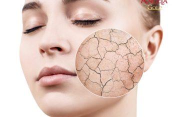 da mặt bị hư tổn khô ráp