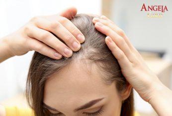 rụng tóc ở phụ nữ tuổi trung niên