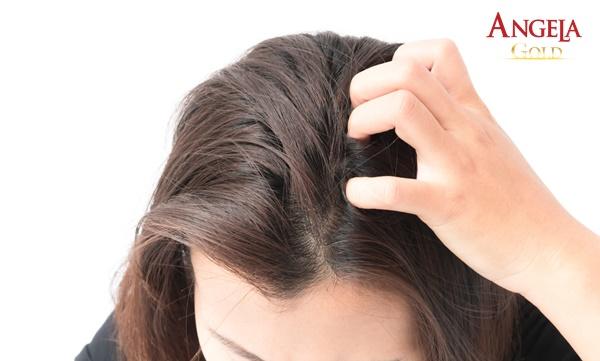 nguyên nhân rụng tóc ở tuổi tiền mãn kinh
